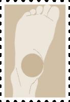 下肢(脚からふくらはぎ、あし)の痛み