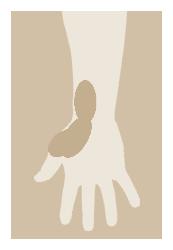 産後 腱鞘炎
