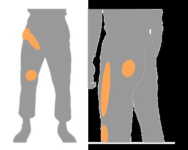 坐骨神経痛 足の付け根の痛み
