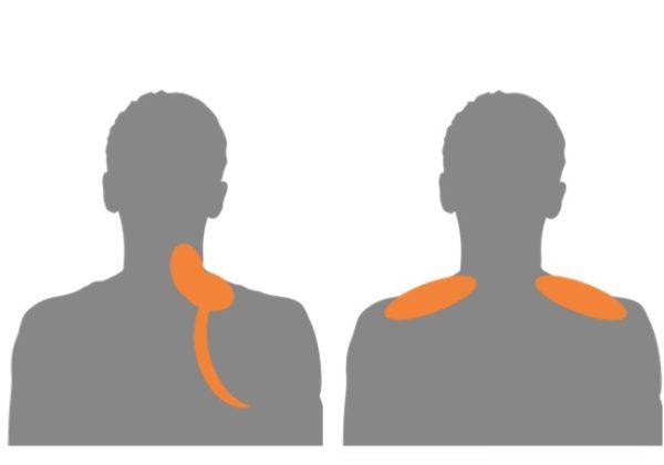 肩から肩甲骨のコリ