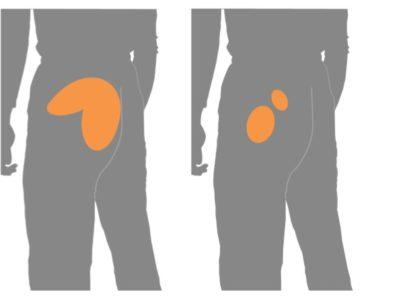 坐骨神経痛 腰からお尻の痛み