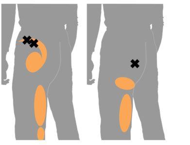 坐骨神経痛の トリガーポイント