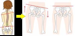 カラダのバランスと骨盤の関係